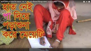 হাত, পা, চোখ নেই, দরিদ্রতায় পিষ্ট তবুও সাফল্য । Exclusive Video