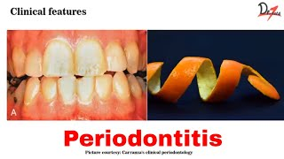 Managing complications of gingival and periodontal diseases - professional mechanical plaque control.