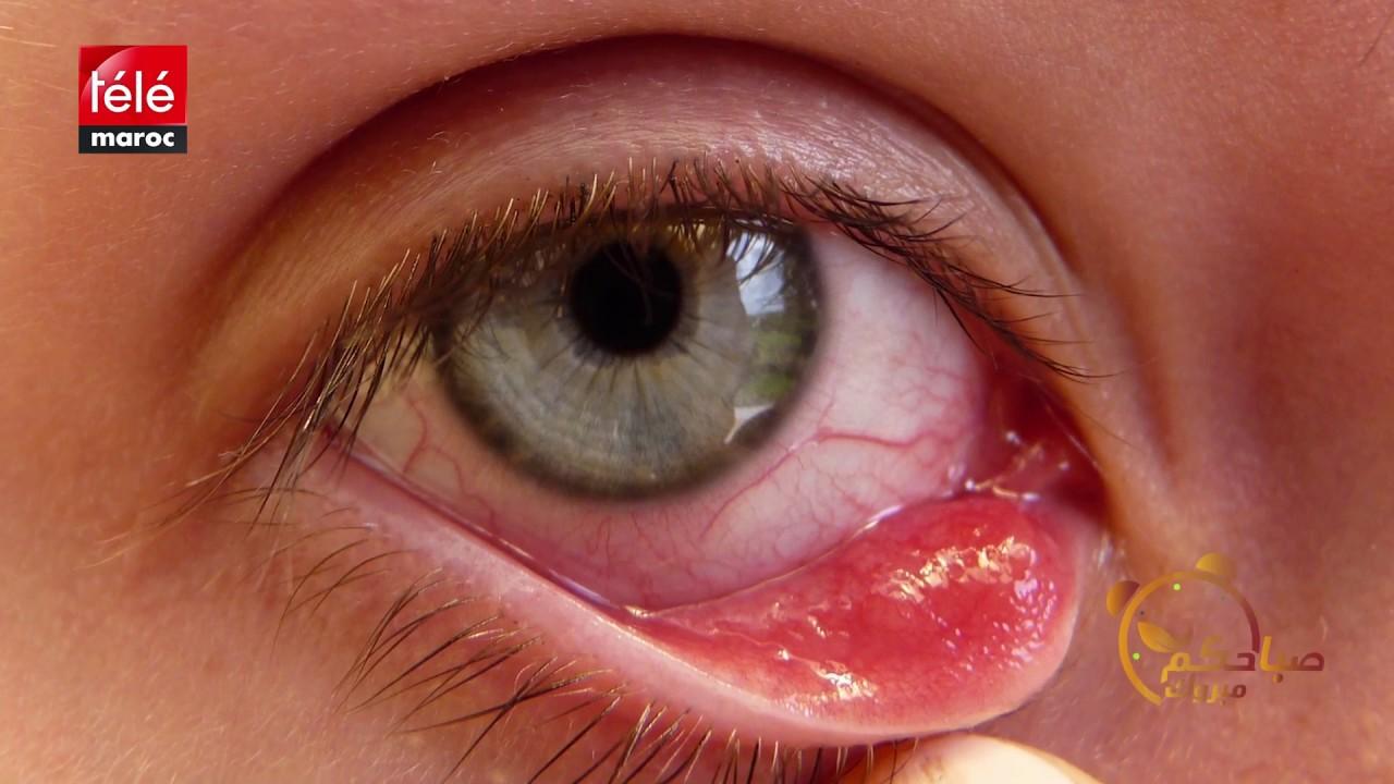 هذه أعراض وأسباب الشعيرة في العين وطرق علاجها Youtube