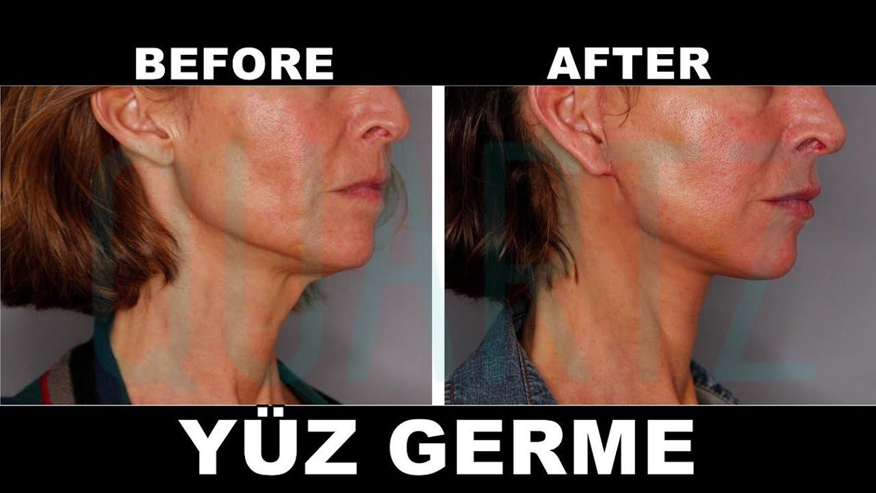 Yüz Germe Ameliyatı | Orta Yüz Germe | Yüz Gençleştirme | Op. Dr. Leyla  Arvas - YouTube