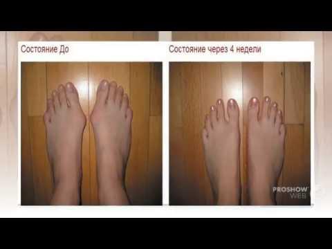 Чем лечить травму голеностопа в домашних условиях