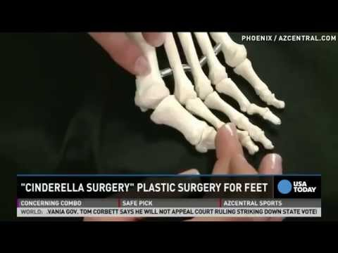 Cinderella foot cosmetic surgery