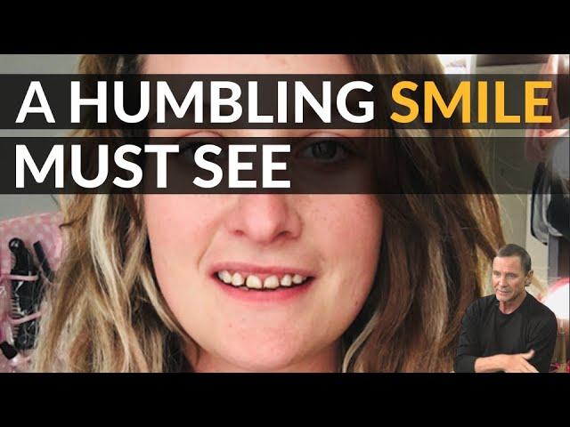 Ein demütigendes Lächeln zu einem atemberaubenden Lächeln mit Dentalveneers | Brighter Image Lab
