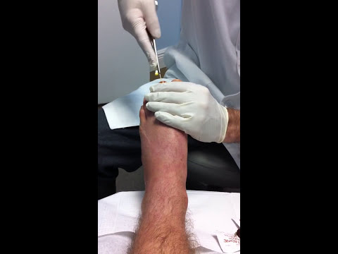 Metatarsal Pin Removal