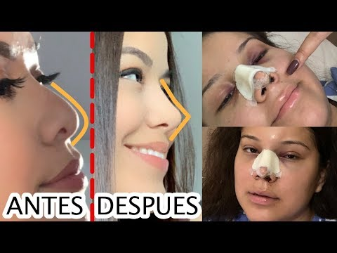 cirugia de nariz precio ecuador