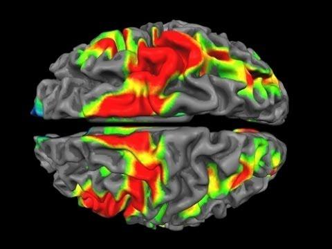 neuroimaging youtube