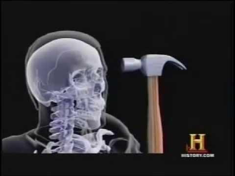 Skull Cracking