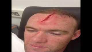 Wayne Rooney head injury by Phil Jones - England National team training