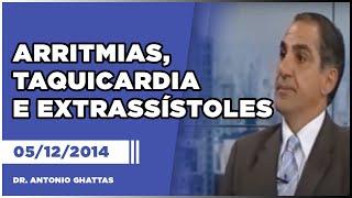 arritmias taquicardia e extrassstoles 05 12 2014 dr antonio ghattas