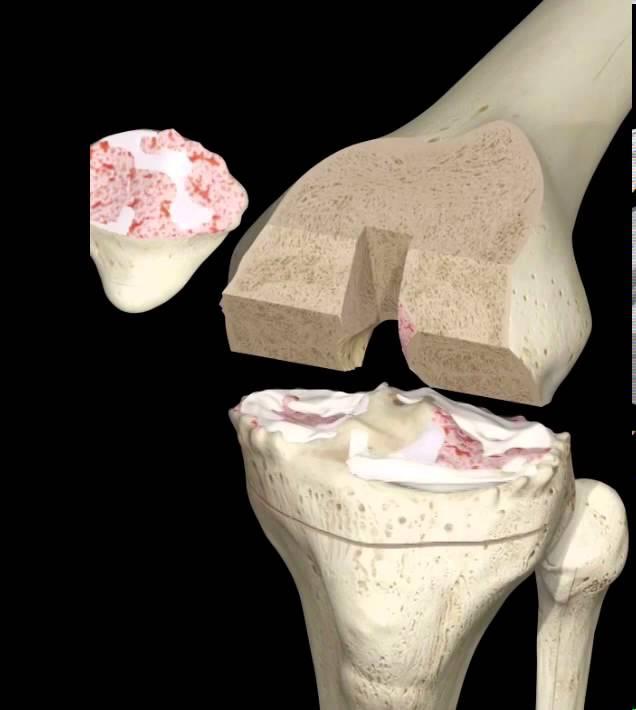 Knee Replacement - Pr U00f3tese Do Joelho