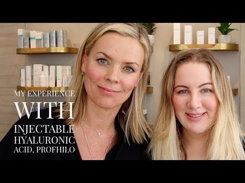 My experience with injectable Hyaluronic Acid, Profhilo - YouTube
