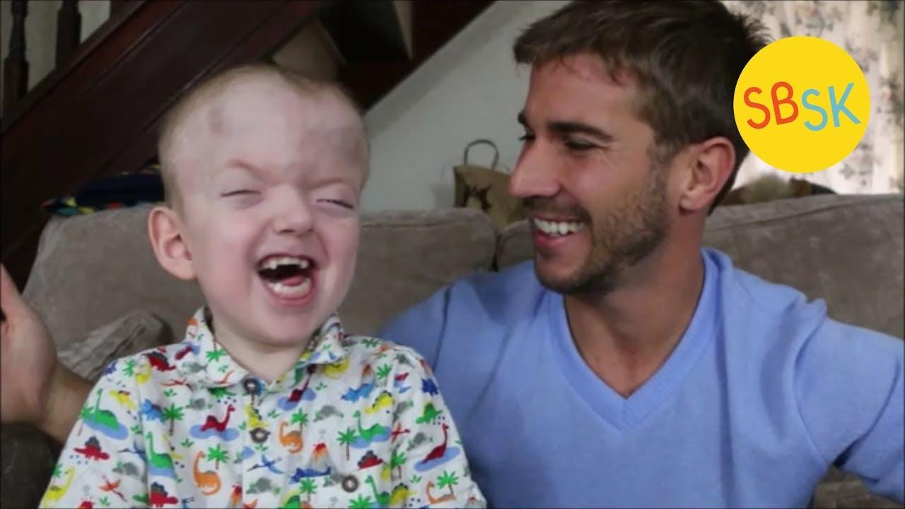 leo the hero pfeiffer syndrome youtube