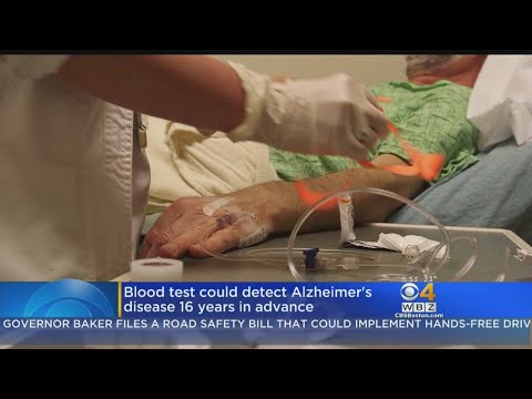Blood Test Could Detect Alzheimer's Disease 16 Years In Advance