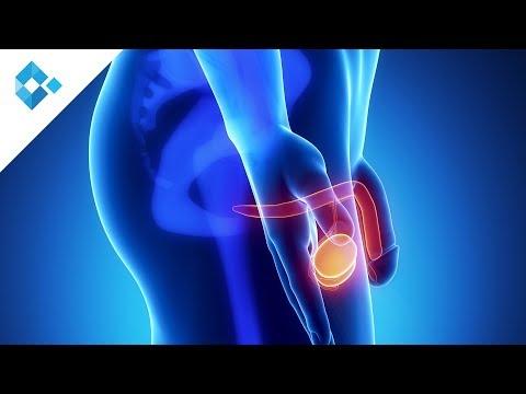 prostata vorsorgeuntersuchung vorbereitung