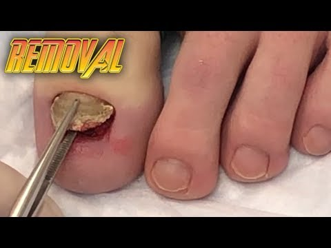 Aggie Drew Toenail Removal!  Nail Fungus & Ramshorn Nails, Pt 2