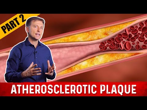 what-is-atherosclerosis-plaque?-|-dr.berg-on-cholesterol-levels-(part-2)