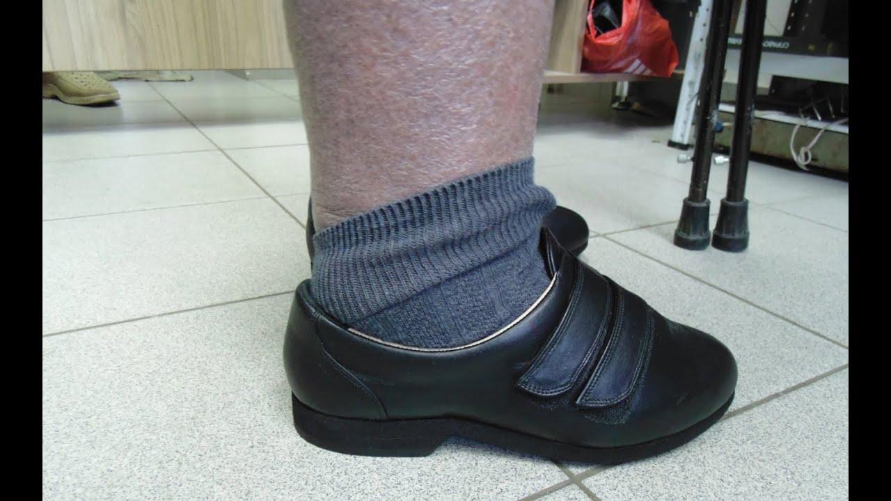 где купить обувь на нестандартные ноги в кироев норме она