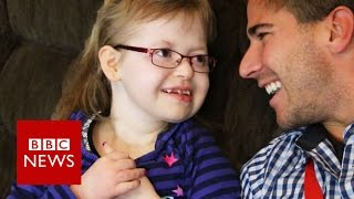 'Inspiring' ex-teacher helps disabled children - BBC News