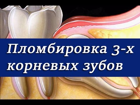 Как пломбировать корневые каналы в молярах.  Эндодонтия, лечение трехкорневых зубов.