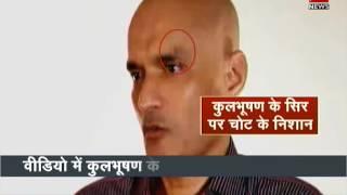 Injury marks on Kulbhushan Jadhav's face| कुलभूषण के चेहरे पर कैसा निशान?