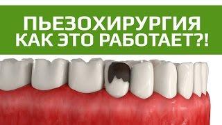 видео Стоматология Медисса в Краснодаре. Виниры#диоксид циркония#импланты#люминиры