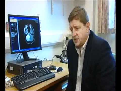 ITV West Country Story On Epilepsy Surgery At Frenchay Hospital Bristol