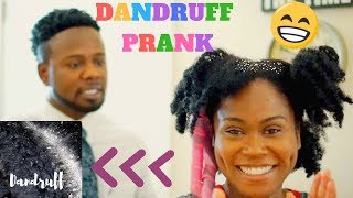 Dandruff Prank On Husband!! | Best Hair Video That You Will Watch Today