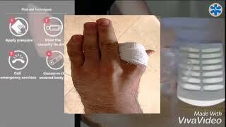 ролик при оказания первый помощи при открытой ампутации указательного пальца кисти