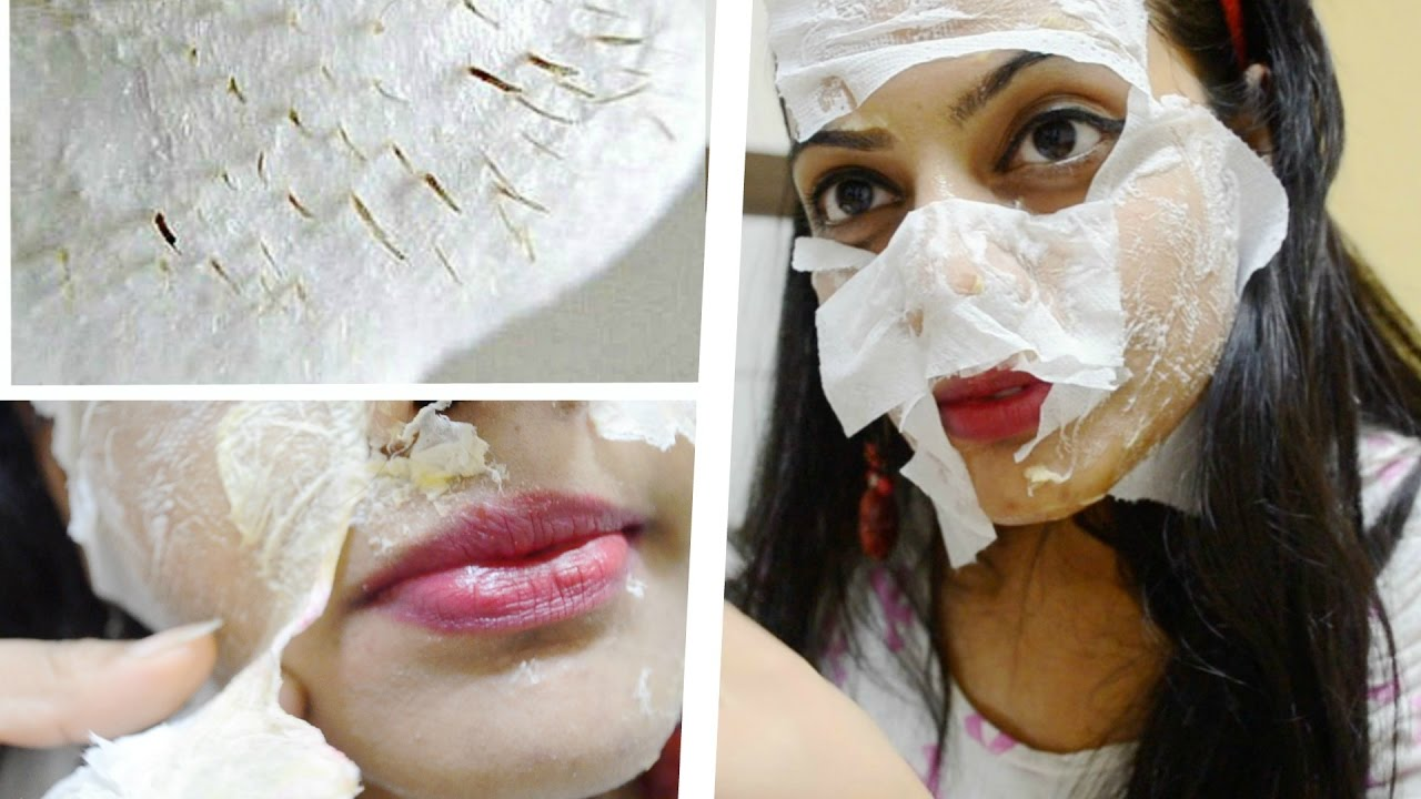 Whiteheads on Nose Causes Treatment and More