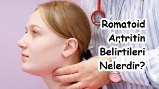 Romatoid Artritin Belirtileri Nelerdir