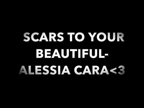 Scars To Your Beautiful Alessia Cara Lyrics