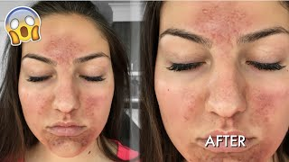 One of Jaclyn Forbes's most viewed videos: SCARY CHEMICAL PEEL EXPERIENCE