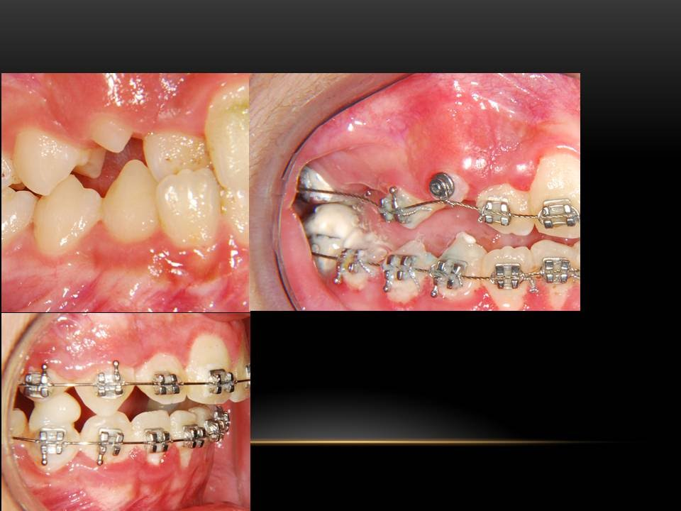 Pulling down a Canine tooth with Orthodontics!