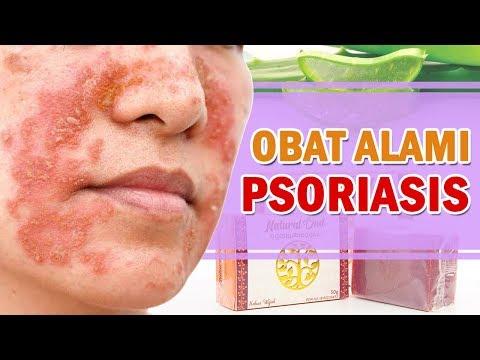obat-alami-psoriasis/eksim---alami-dan-tanpa-efek-samping