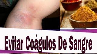 Sanguíneos tiro coágulos dado evitar para