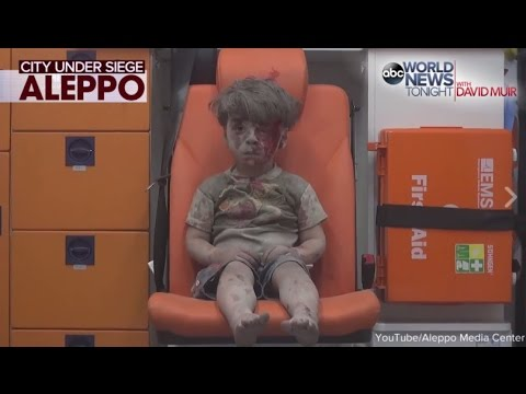Syrian President Says Boy in Ambulence Photo 'Forged'