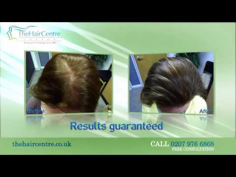 Losing Your Hair......The Hair Centre London