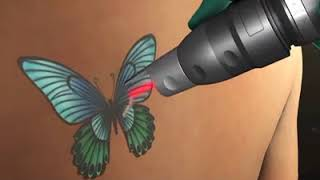 PicoSure for Tattoo Removal