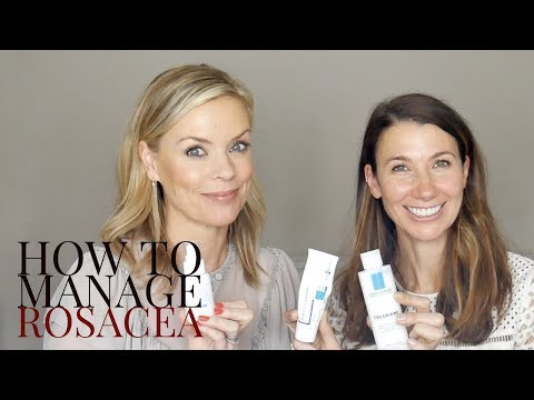 How to manage Rosacea with Rosie Green