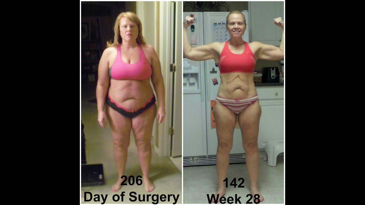Week 28 Post Op Surgery Vertical Sleeve Gastrectomy ...
