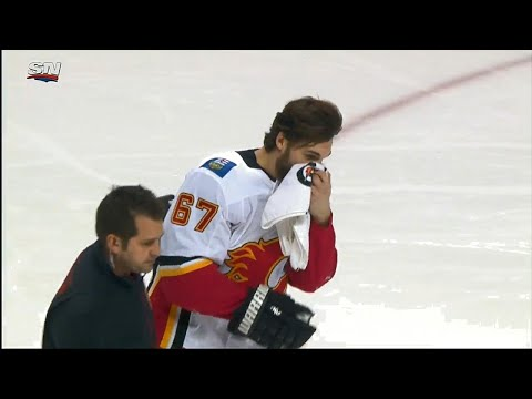 Flames' Frolik takes a puck to the face, leaves game