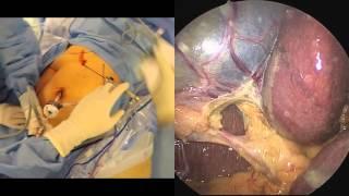 Split Screen First Person Gallbladder Complete Big