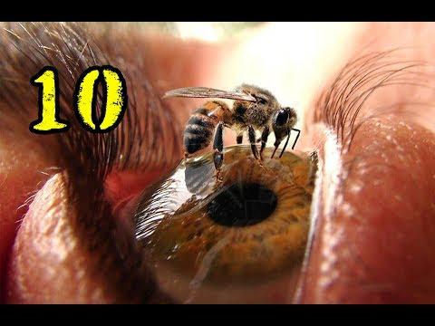 10 อันดับ แมลงที่ต่อยเจ็บที่สุดในโลก l Top 10 MOST PAINFUL BUG STINGS