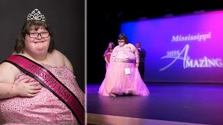 380-Pound Teen With 'Chronic Eating' Condition Wins Pageant Crown