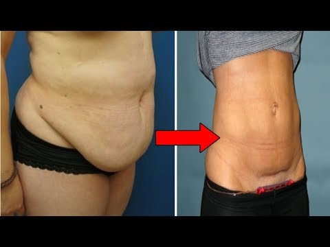 how-to-lose-hanging-belly-fat-after-c-section-|-flat-stomach-after-cesarean-#naturalremedies