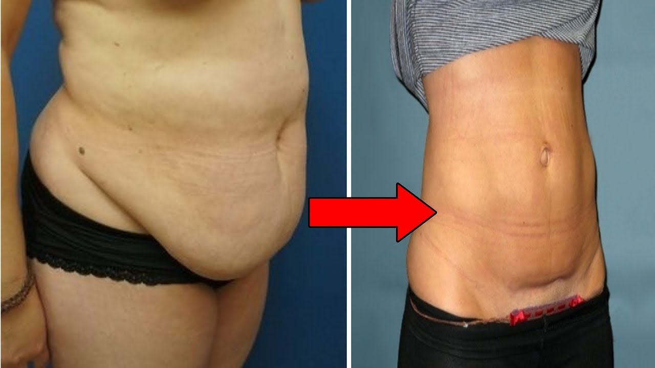 How to Lose Hanging Belly Fat After C Section | Flat ...