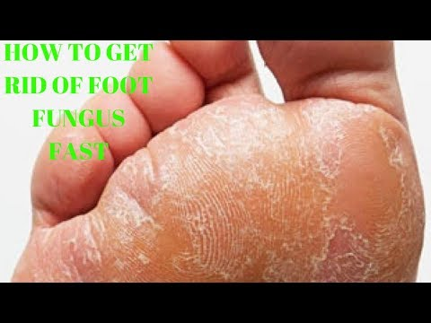 how to get rid of foot fungus fast