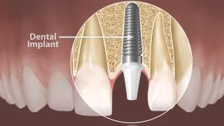 Glendora Cosmetic Dentist | Dental Implants Thumbnail