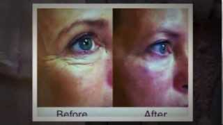 Anti-Aging Therapies at Renovation Cosmetic Center Thumbnail