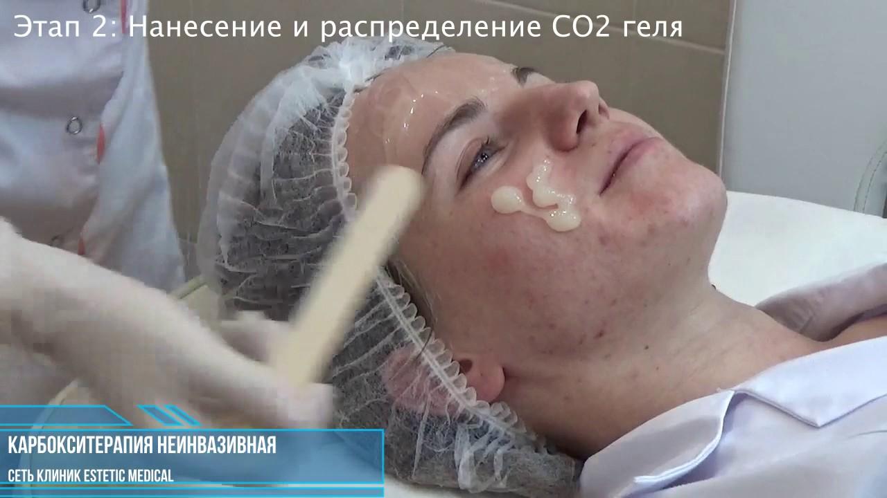 Купить автомобиль Mazda CX-7 Автосалон АвтоЦентр Одесса - YouTube
